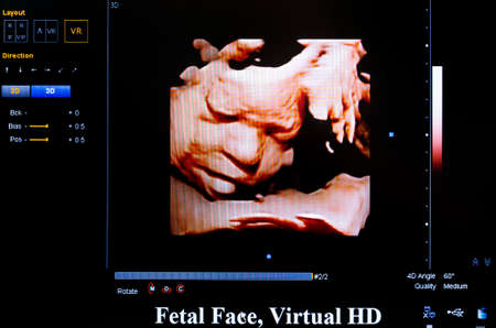 embryonic: Modern echocardiography (ultrasound) machine monitor. Colour image. New hospitl equipment for a better diagnostics. Fetral face, Virtual HD