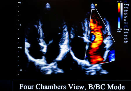 four chambers: Modern echocardiography (ultrasound) machine monitor. Colour image. New hospitl equipment for a better diagnostics. Four Chambers View, BBC Mode Stock Photo