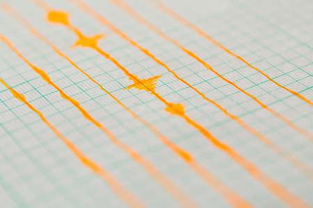sismográfo: Sismológico dispositivo para medir los terremotos. la actividad sismológica viven en la hoja de papel de medición. ola terremoto en papel cuadriculado.