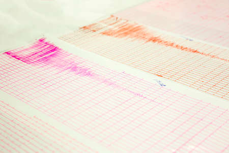 sismográfo: Seismological device for measuring earthquakes. Seismological activity live on the sheet of measuring paper. Earthquake wave on a graph paper. Red and purple lines from seismographs needles. Foto de archivo