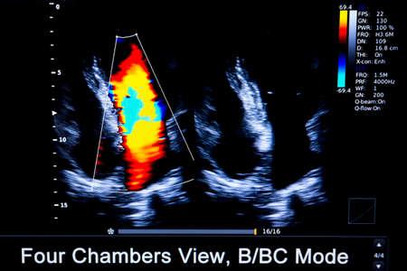 モダンな超音波モニターのカラフルなイメージ。超音波検査機です。ハイテク医療機器です。超音波検査または超音波検査薬で使用されます。人間 写真素材