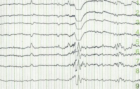 cosinus: pulse trace of oscilloscope for a electro-encephalogramme (EEG) for search epilepsie