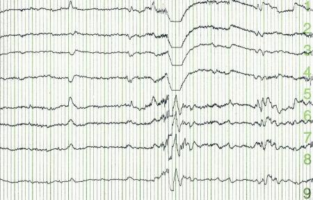 pulse trace of oscilloscope for a electro-encephalogramme (EEG) for search epilepsie