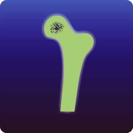 radiotherapy: Osteoporosis