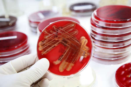 pathology: Growth of bacteria (Streptococcus) on blood agar in a laboratory.