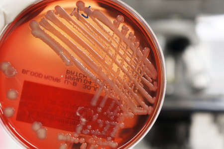identifiable: Growth of bacteria (Klebsiella) on blood agar in a laboratory. No identifiable features are on the plate.