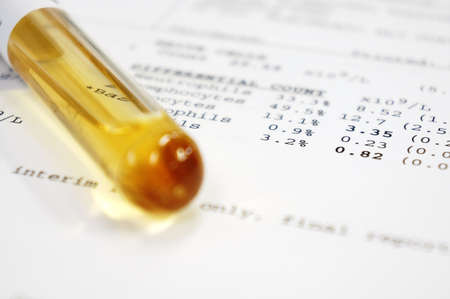 sedimentation: A tube of human serum with results on the paper