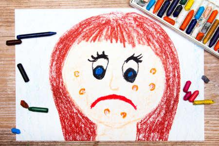 pubertad: dibujo colorido: Mujer joven triste con el acné