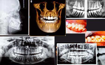 Panoramiczne i 3D rentgenowskie dentystyczne wiele ujęć
