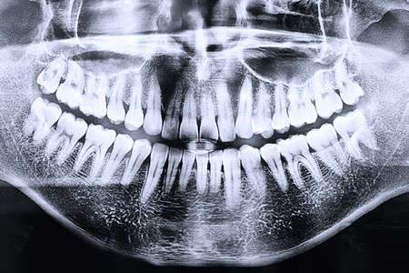 Panoramische tandheelkundige röntgenfoto Stockfoto