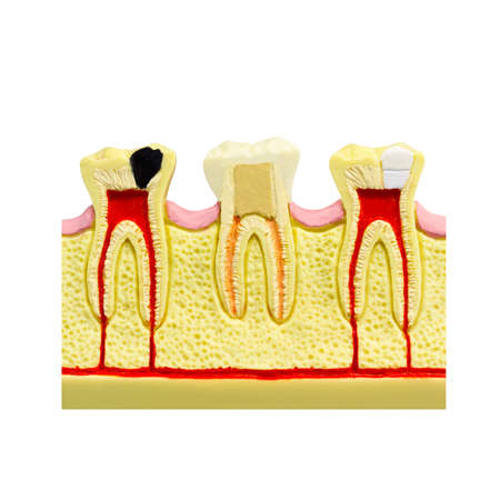 Human tooth gum cross section Tooth Root canal Tooth Detailed anatomy tooth color image stomatology flat style tooth concept design Dental illustration tooth picture dental cavitation treatment layout