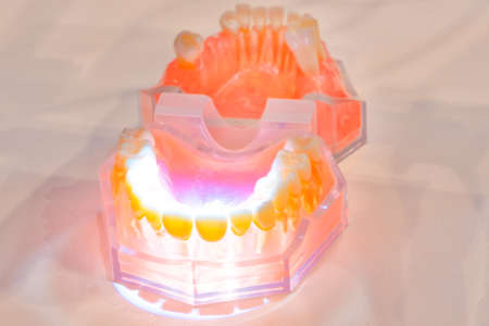 tooth dentures in  laboratory