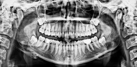 Panoramic dental x-ray  Stock Photo