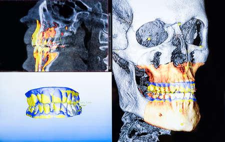 Radiografia dentale panoramica e 3D tanti scatti