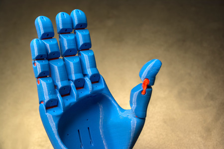 prothesis: Prosthetic Hand