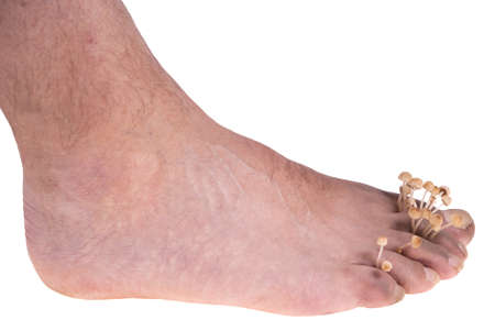 dirty infected foot mycosis on white background Stock Photo