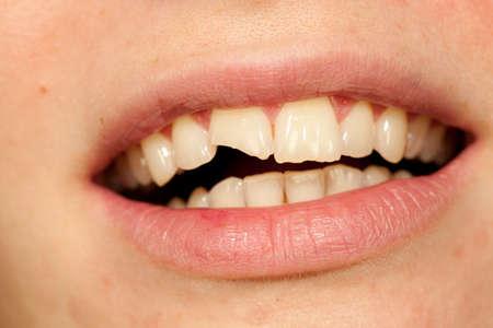 아름다운 입 및 깨진 치아 여자