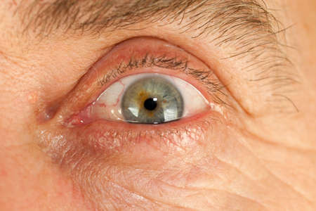wrinkled brow: opening human eye with red eyeball Stock Photo