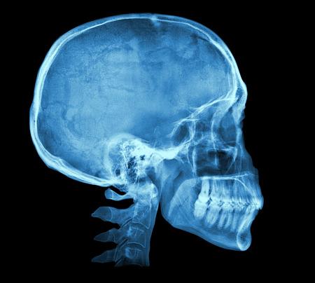 x ray skeleton: Human skull X-ray image isolated on black
