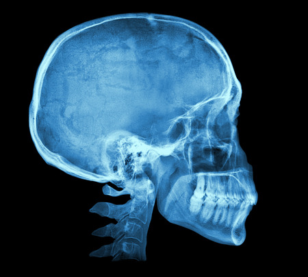 Human skull X-ray image isolated on black