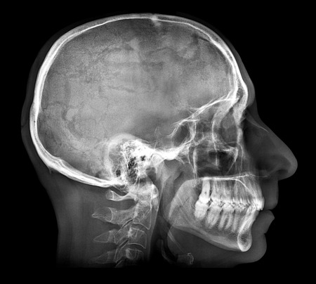 radiological: Human skull X-ray image isolated on black