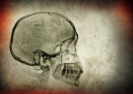 X-ray skull image on a dark textured background Stock Photo