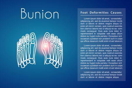 Bunion in foot vector background