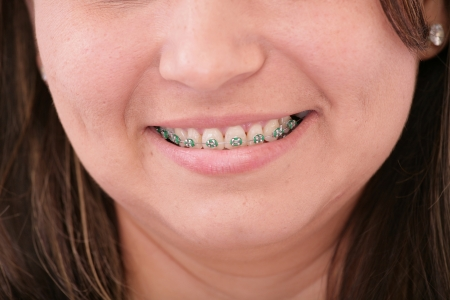 teeth with braces  photo