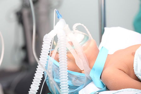 o2: Unidentified boy with oxygen mask in the surgery. Focus in the mask tubes. Stock Photo