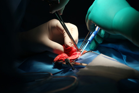 Macro shot of an infant lung surgery photo