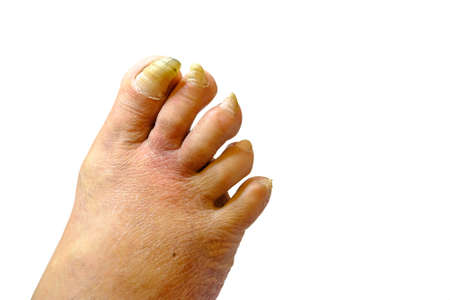 Sick unhealthy nails on the foot of a man isolated