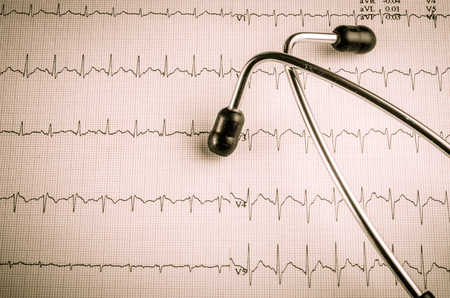 cardiological: medical examination, electrocardiogram, heart medicine and therapy, vintage style