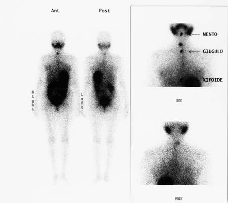 Scintigraphy.