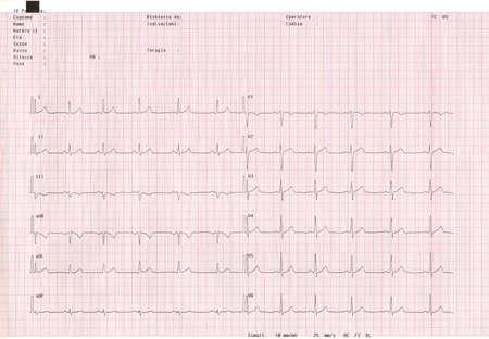 sismogr�fo: Ecocardiograma.