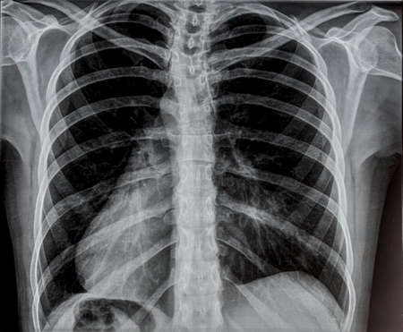 human chest: Chest x-ray. Stock Photo
