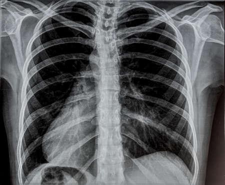 Radiographie pulmonaire. Banque d'images - 53450606