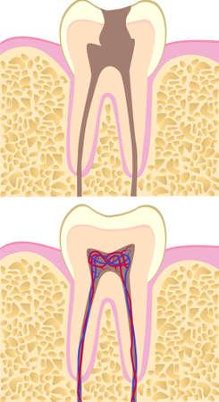dentadura postiza: Anatom�a de diente insalubres y Healhy Vectores