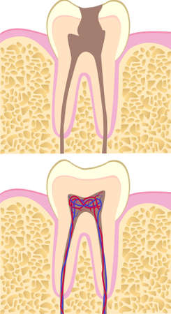 conscious: Healhy and unhealthy tooth anatomy