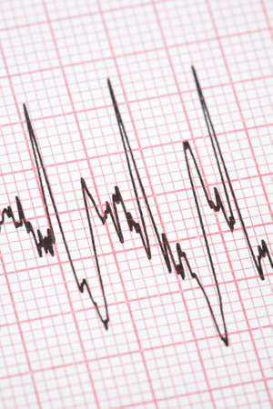 printout: Printout from cardiograph during exercise Stock Photo