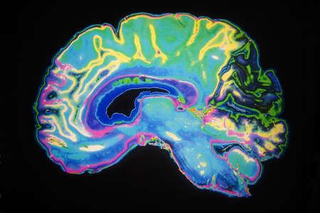 Kunstmatig gekleurde MRI-scan van menselijk brein Stockfoto