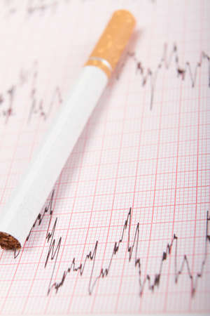 printout: Cigarette On ECG Printout