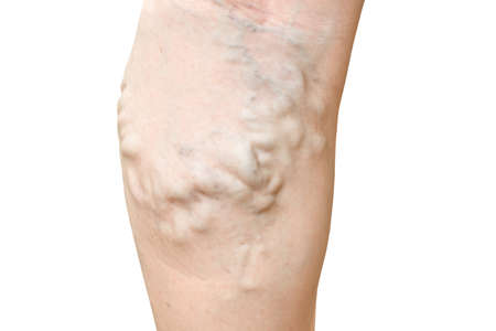 Varicose veins closeup on legs isolate on white background. Stock Photo