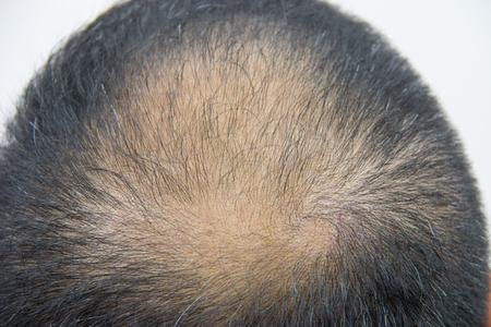 calvicie: Primer plano de una cabeza con problema de pérdida de cabello
