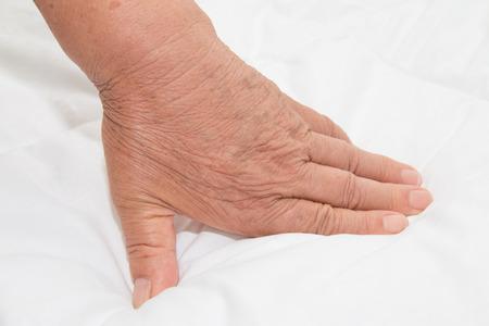 oldage: wrinkled hand