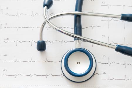 elettrocardiogramma: Stetoscopio sul grafico dell'elettrocardiogramma Archivio Fotografico