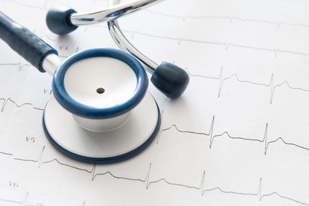 electrocardiogram: Stethoscope on electrocardiogram chart