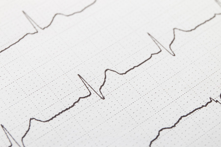 fibrillation: Close up of electrocardiogram chart background Stock Photo
