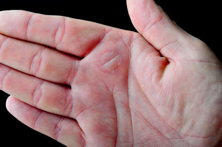 scald: A blister on a male hand caused by a burn