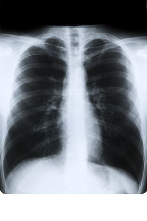 X-ray of chest on previewer
