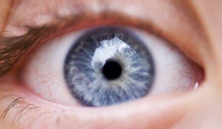 인간의 눈